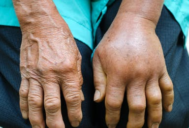 Swelling, Edema, and Lymphedema